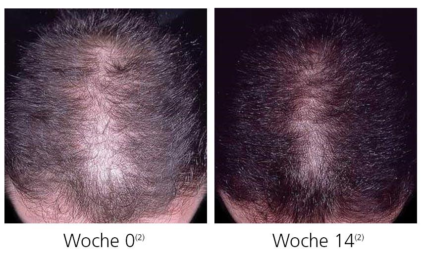 Das Öl makadamii für das beschädigte Haar