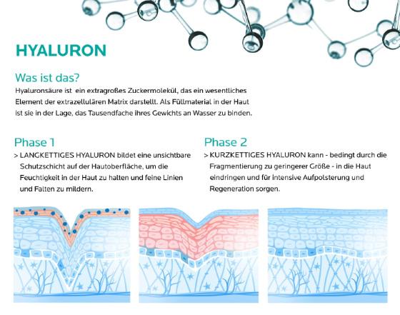 Themenshop Hyaluronsaeure gegen Falten