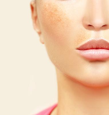 Themenshop Hyperpigmentierung SkinCeuticals Bild 2