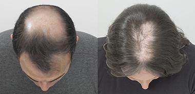 Themenshop Ursachen Haarausfall Ell-Cranell Bild 2