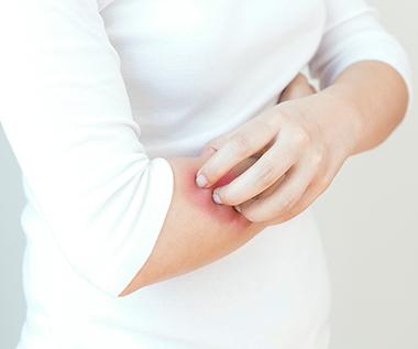 Themenshop Schuppenflechte Psoriasis