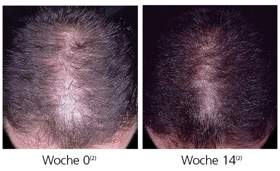 Themenshop Haarausfall Männer
