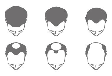 Themenshop Ursachen Haarausfall Bild 3