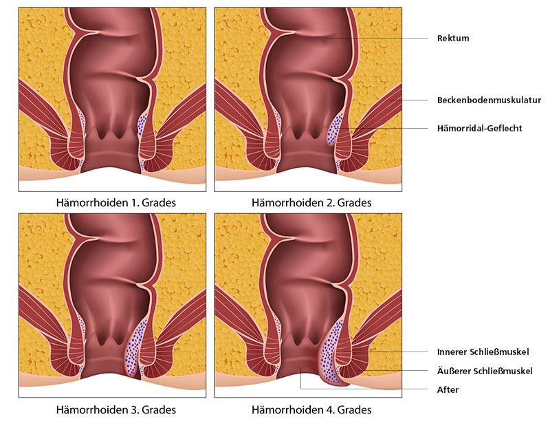 Hämorrhoiden in der Schwangerschaft Themenshop - medpex Versandapotheke