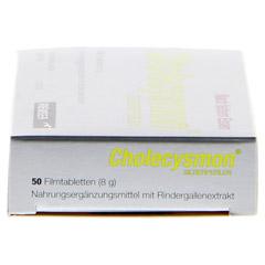 CHOLECYSMON Silberperlen 50 Stück - Linke Seite