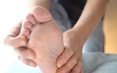 Themenshop Fußpilz erkennen behandeln Loceryl Bild 1