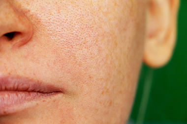 Themenshop Hyperpigmentierung SkinCeuticals Bild 3